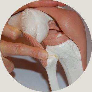 Fibulaköpfchen Korrektur Dorn Methode