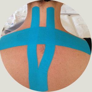 Kinesiotaping Dorn-Therapie